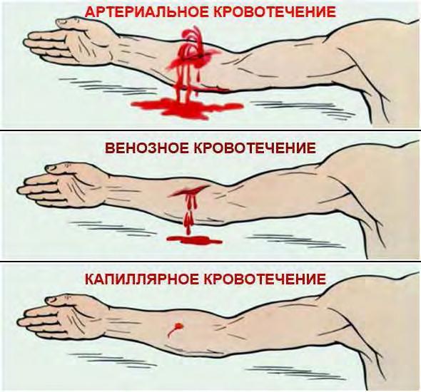 Фото - схемы перевязок плечевого сустава первая помощ признаки дисплазии тазобедренных суставов тип 2б